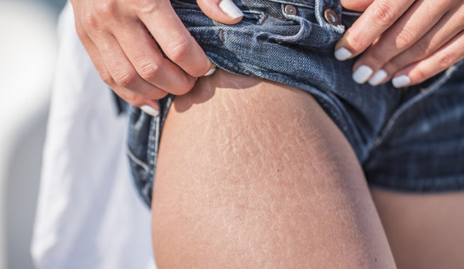 Stretch marks on a woman's leg